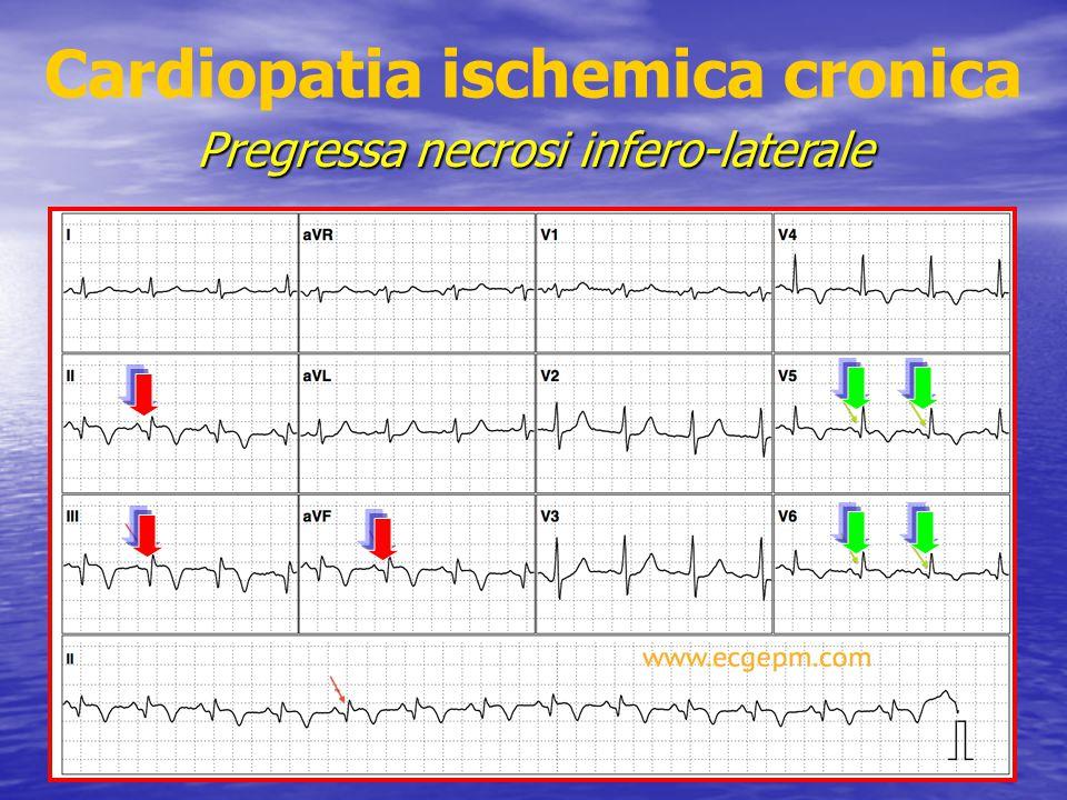 Cardiopatia ischemica cronica Pregressa necrosi infero-laterale