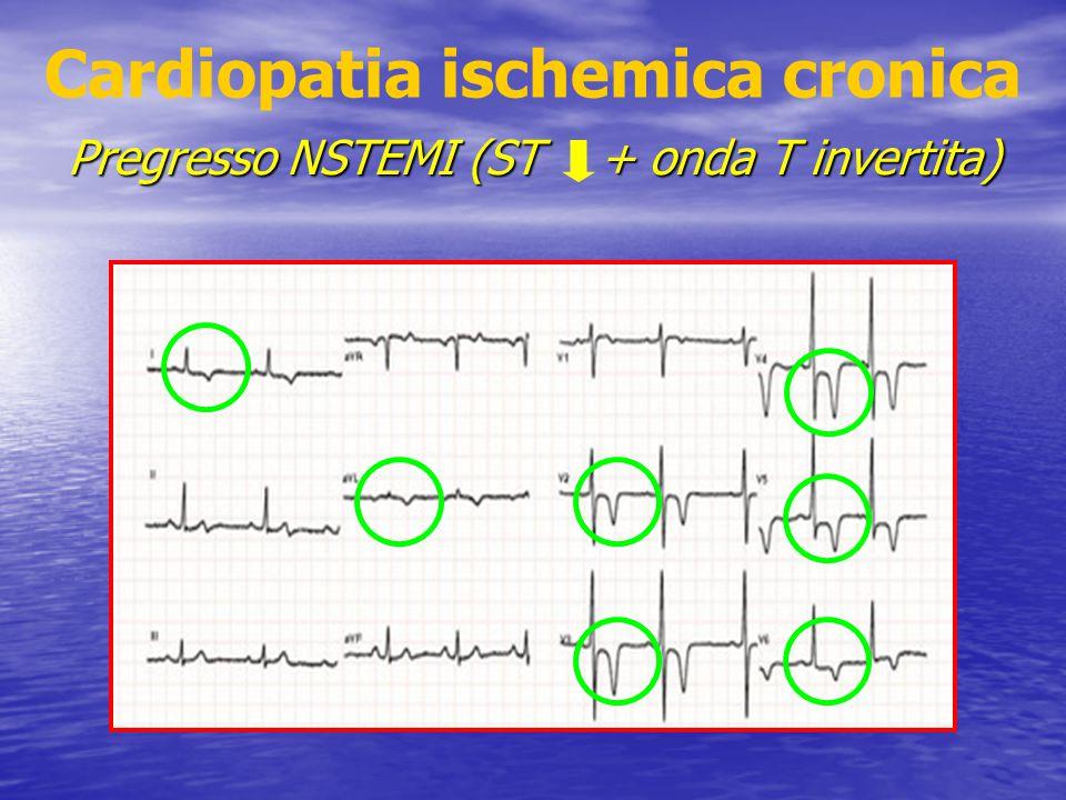 Cardiopatia ischemica cronica Pregresso NSTEMI (ST + onda T invertita)