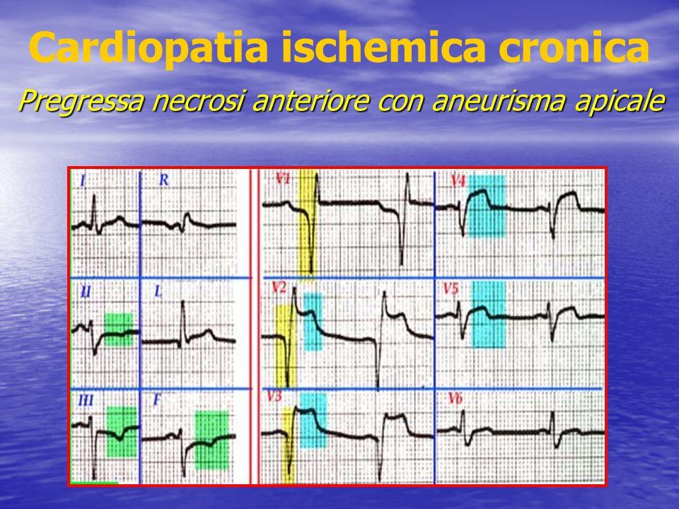 Cardiopatia ischemica cronica Pregressa necrosi anteriore con aneurisma apicale
