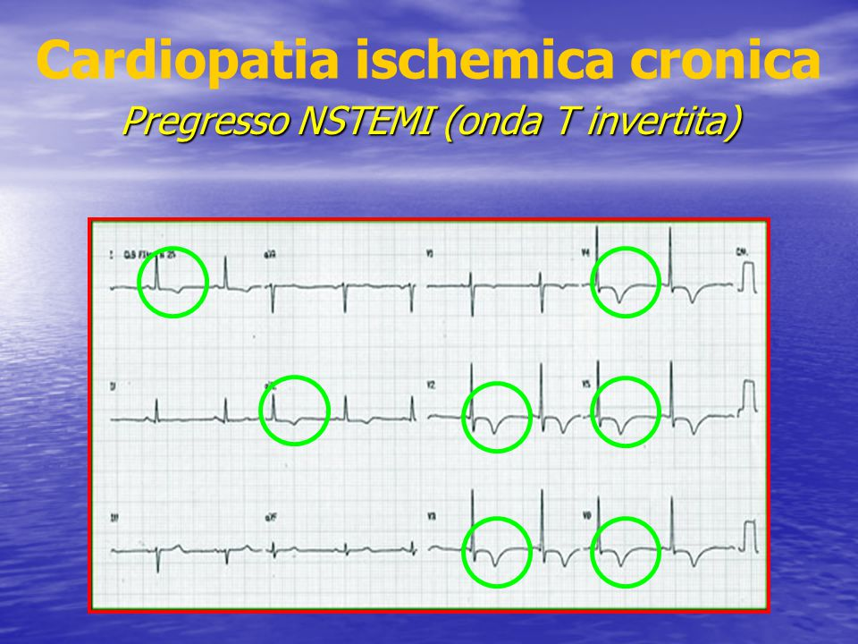 Cardiopatia ischemica cronica Pregresso NSTEMI (onda T invertita)