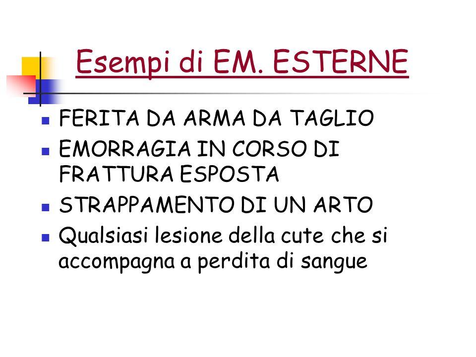 Esempi di EM.