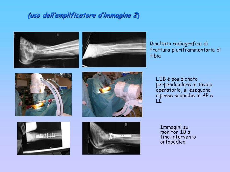 Risultato radiografico di frattura pluriframmentaria di tibia Immagini su monitor IB a fine intervento ortopedico Frattura dopo intervento di sintesi