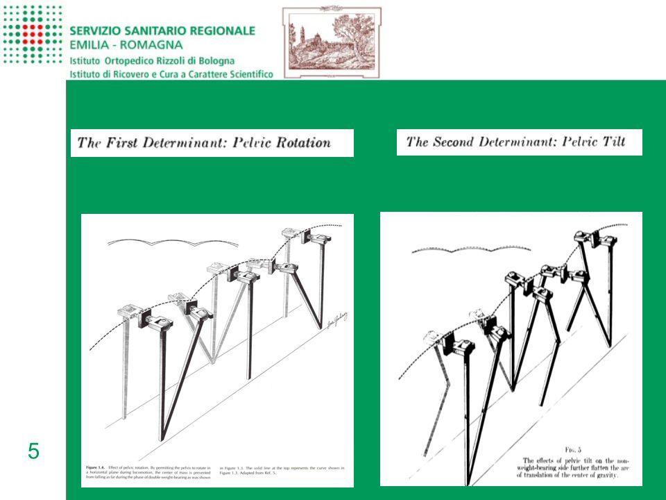 16 Principali compensi nell'amputato transfemorale durante il cammino Minore lunghezza del semipasso, Minore durata della fase di appoggio dal lato protesizzato (Edelstein, 2011)