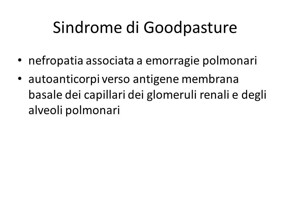Sindrome di Goodpasture nefropatia associata a emorragie polmonari autoanticorpi verso antigene membrana basale dei capillari dei glomeruli renali e degli alveoli polmonari