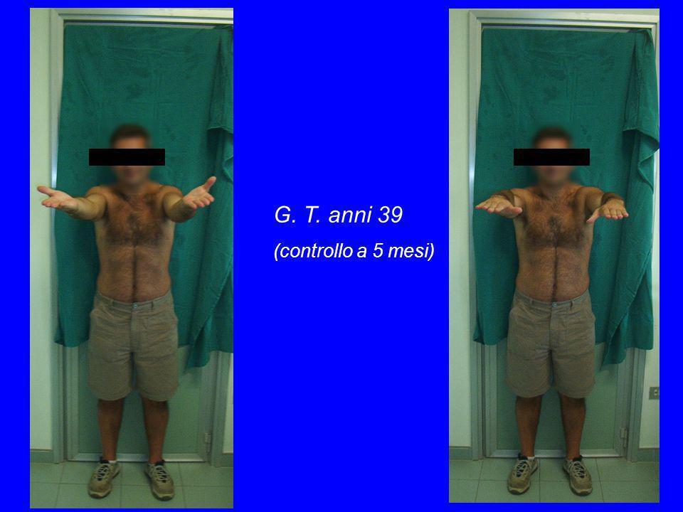 G. T. anni 39 (controllo a 5 mesi)