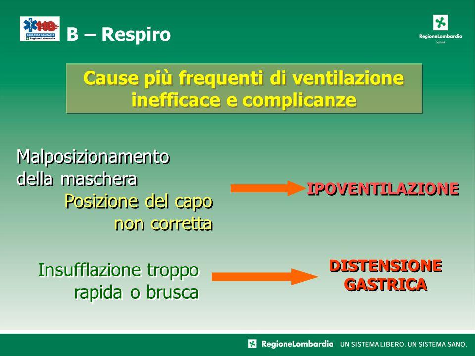 Cause più frequenti di ventilazione inefficace e complicanze Malposizionamento della maschera Posizione del capo non corretta Malposizionamento della