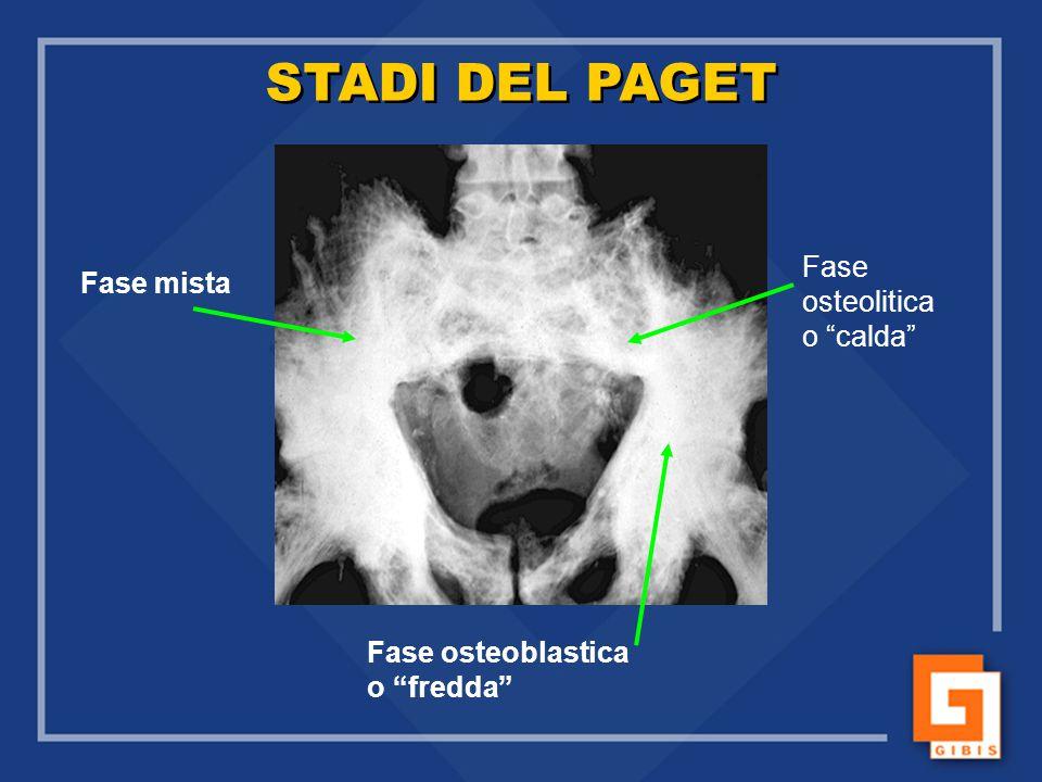 """STADI DEL PAGET Fase mista Fase osteolitica o """"calda"""" Fase osteoblastica o """"fredda"""""""