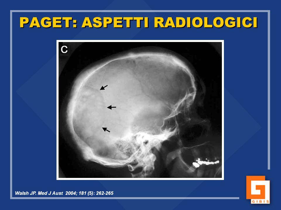 PAGET: ASPETTI RADIOLOGICI Walsh JP. Med J Aust 2004; 181 (5): 262-265
