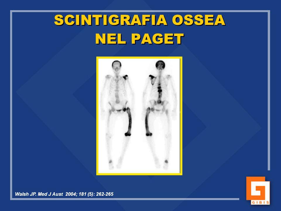 SCINTIGRAFIA OSSEA NEL PAGET Walsh JP. Med J Aust 2004; 181 (5): 262-265