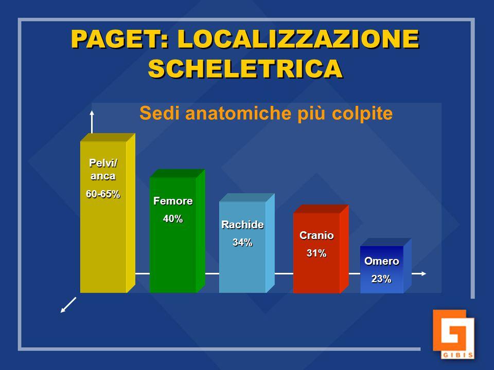 Pelvi/ anca 60-65% Rachide34% Cranio31% Femore40% Omero23% PAGET: LOCALIZZAZIONE SCHELETRICA Sedi anatomiche più colpite