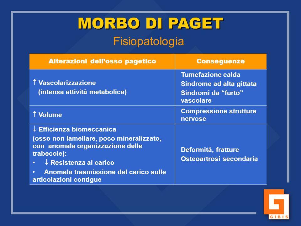 Fisiopatologia Alterazioni dell'osso pageticoConseguenze  Vascolarizzazione (intensa attività metabolica) Tumefazione calda Sindrome ad alta gittata