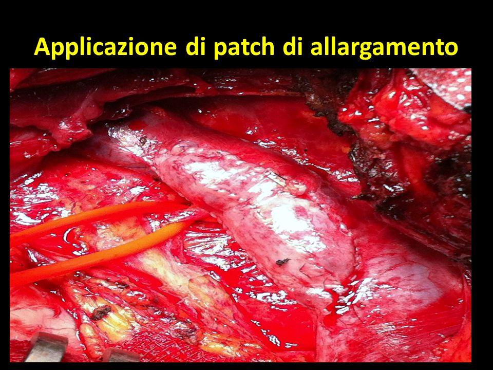 Applicazione di patch di allargamento