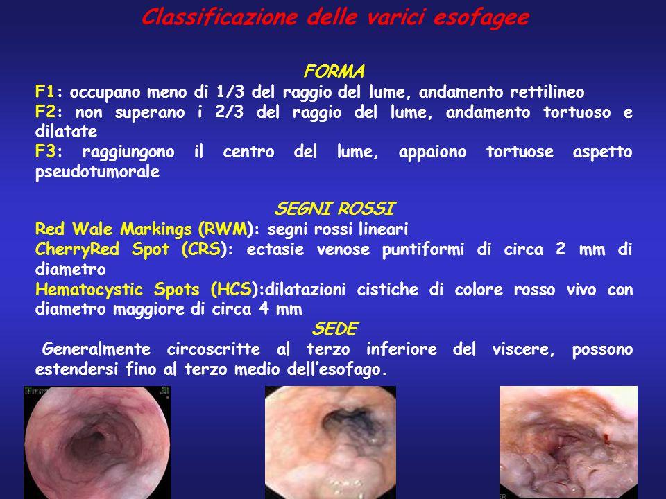 Classificazione delle varici esofagee FORMA F1: occupano meno di 1/3 del raggio del lume, andamento rettilineo F2: non superano i 2/3 del raggio del l
