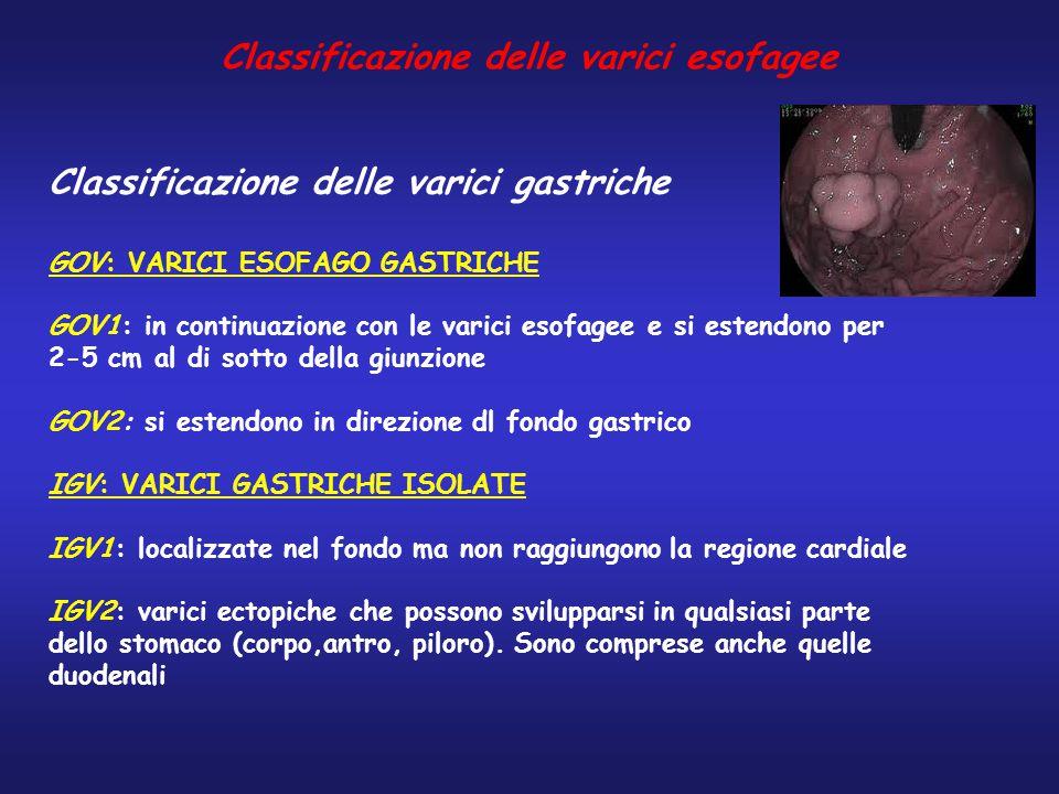 Classificazione delle varici gastriche GOV: VARICI ESOFAGO GASTRICHE GOV1: in continuazione con le varici esofagee e si estendono per 2-5 cm al di sot