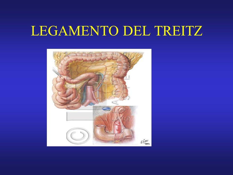 LEGAMENTO DEL TREITZ