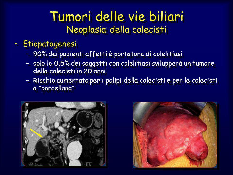 Tumori delle vie biliari Neoplasia della colecisti Etiopatogenesi –90% dei pazienti affetti è portatore di colelitiasi –solo lo 0,5% dei soggetti con