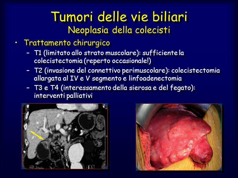 Tumori delle vie biliari Neoplasia della colecisti Trattamento chirurgico –T1 (limitato allo strato muscolare): sufficiente la colecistectomia (repert