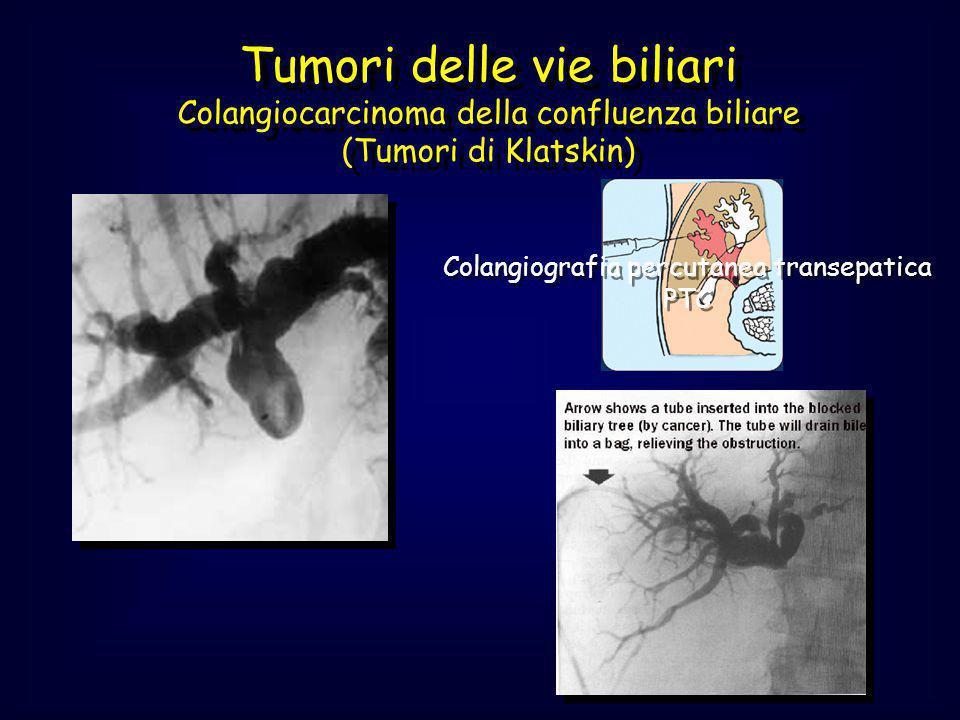 Tumori delle vie biliari Colangiocarcinoma della confluenza biliare (Tumori di Klatskin) Colangiografia percutanea transepatica PTC Colangiografia per