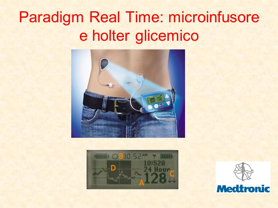 Paradigm Real Time: microinfusore e holter glicemico
