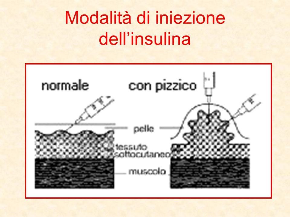 Modalità di iniezione dell'insulina