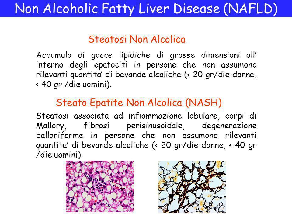 Non Alcoholic Fatty Liver Disease (NAFLD) Accumulo di gocce lipidiche di grosse dimensioni all' interno degli epatociti in persone che non assumono rilevanti quantita' di bevande alcoliche (< 20 gr/die donne, < 40 gr /die uomini).