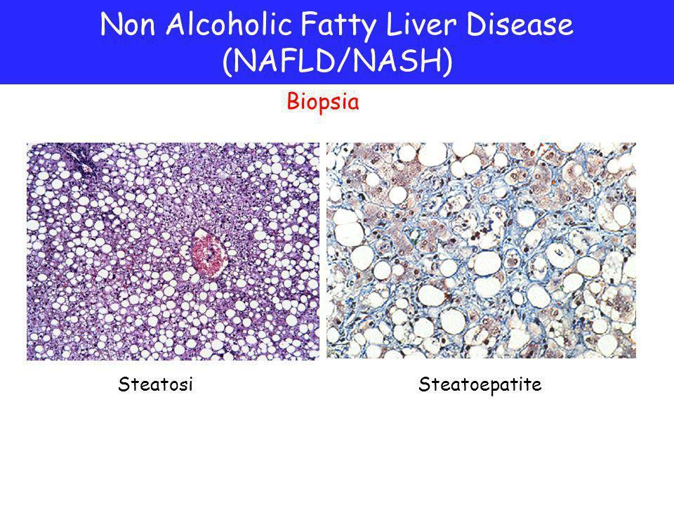 Steatosi Biopsia Non Alcoholic Fatty Liver Disease (NAFLD/NASH) 1 1 2 2 Steatoepatite