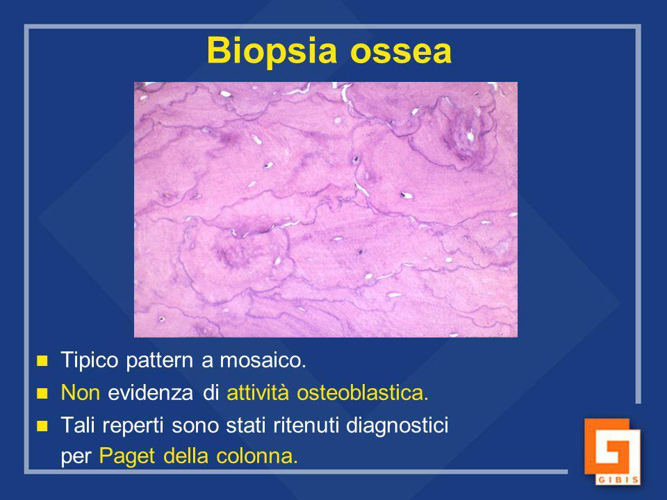 Biopsia ossea Tipico pattern a mosaico. Non evidenza di attività osteoblastica. Tali reperti sono stati ritenuti diagnostici per Paget della colonna.