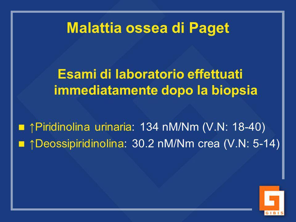 Malattia ossea di Paget Esami di laboratorio effettuati immediatamente dopo la biopsia ↑Piridinolina urinaria: 134 nM/Nm (V.N: 18-40) ↑Deossipiridinol