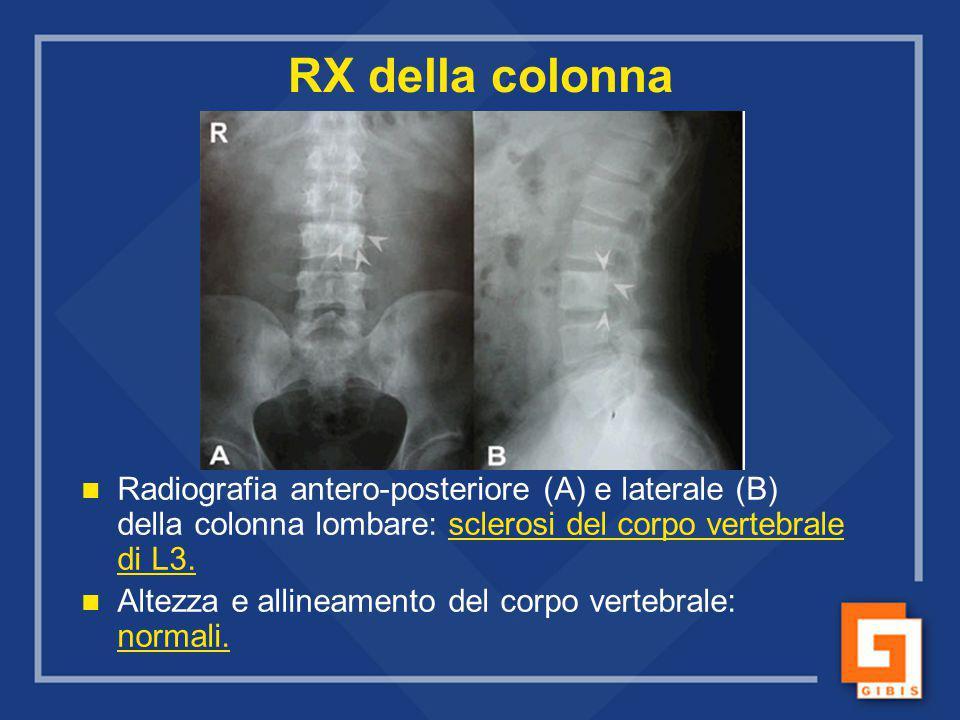RX della colonna Radiografia antero-posteriore (A) e laterale (B) della colonna lombare: sclerosi del corpo vertebrale di L3. Altezza e allineamento d