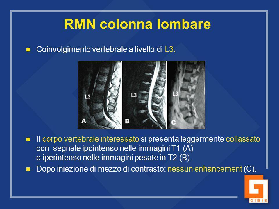 RMN colonna lombare Coinvolgimento vertebrale a livello di L3. Il corpo vertebrale interessato si presenta leggermente collassato con segnale ipointen
