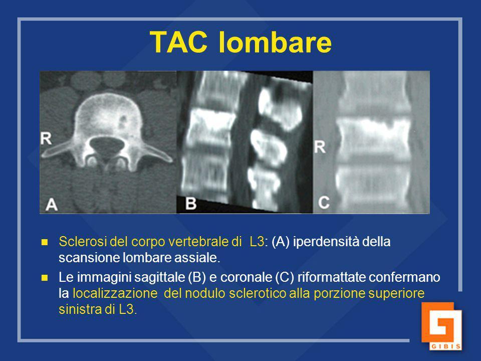 TAC lombare Sclerosi del corpo vertebrale di L3: (A) iperdensità della scansione lombare assiale. Le immagini sagittale (B) e coronale (C) riformattat