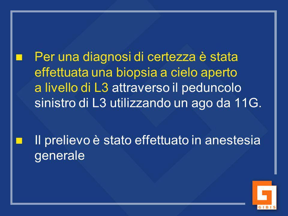 Biopsia ossea Tipico pattern a mosaico.Non evidenza di attività osteoblastica.