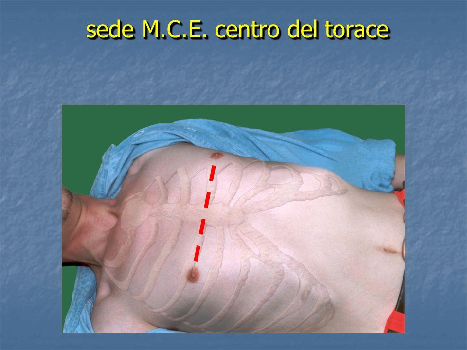 sede M.C.E. centro del torace