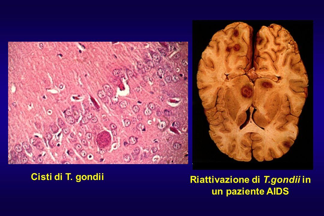Cisti di T. gondii Riattivazione di T.gondii in un paziente AIDS