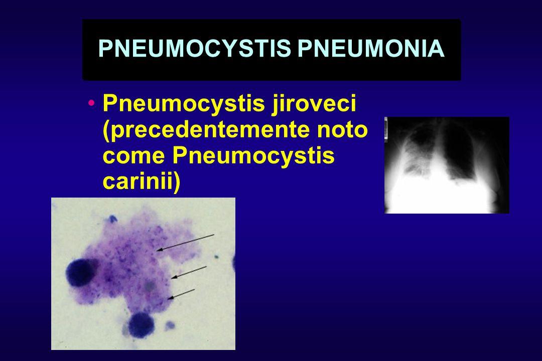 PNEUMOCYSTIS PNEUMONIA Pneumocystis jiroveci (precedentemente noto come Pneumocystis carinii)