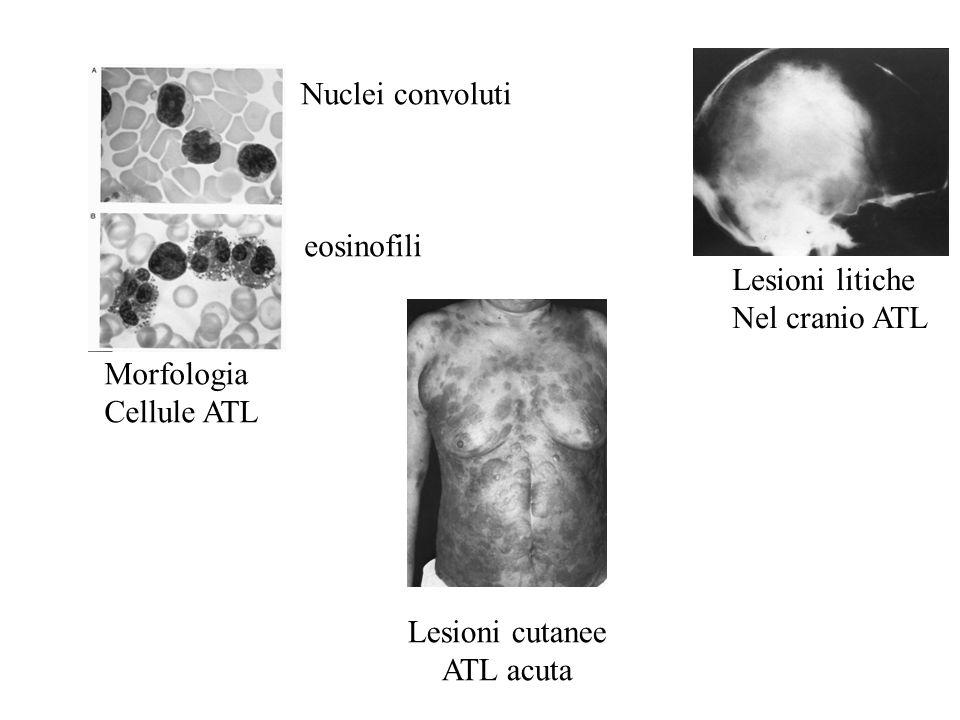 Lesioni cutanee ATL acuta Morfologia Cellule ATL Nuclei convoluti eosinofili Lesioni litiche Nel cranio ATL