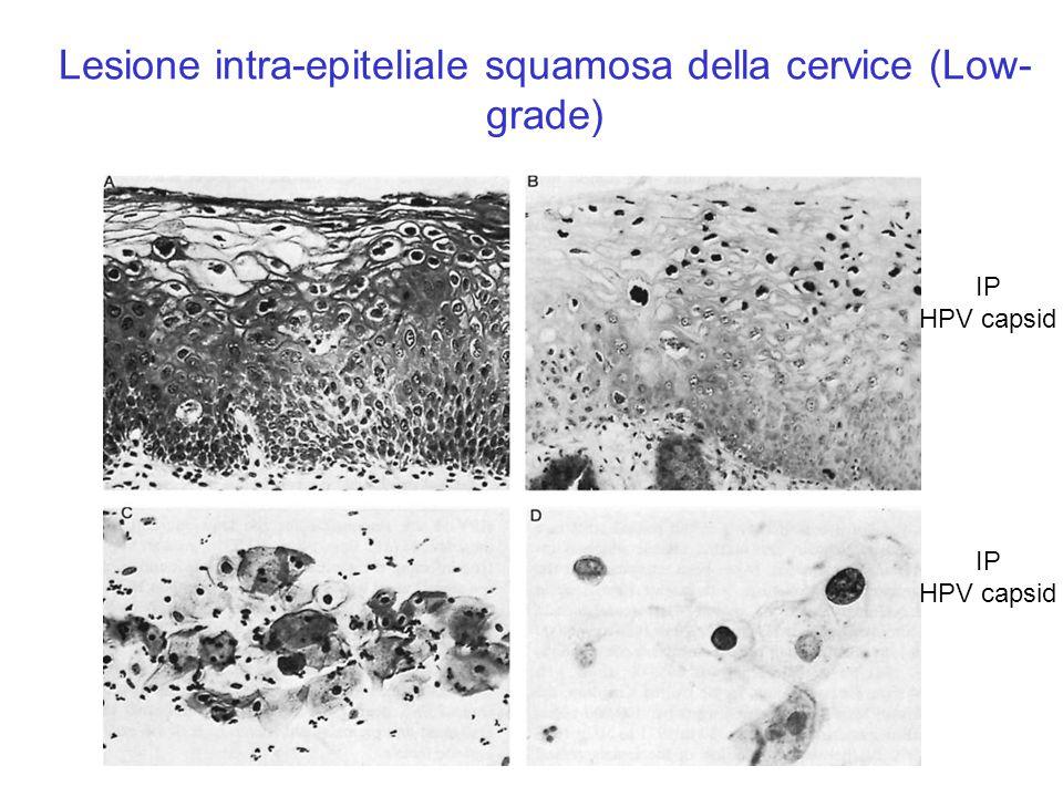 Lesione intra-epiteliale squamosa della cervice (Low- grade) IP HPV capsid H&E IP HPV capsid H&E