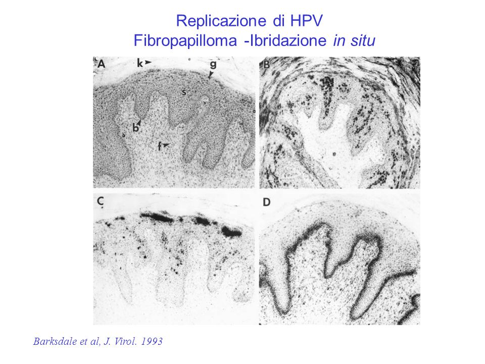 L1E5 Controllo negativo HPV Replicazione di HPV Fibropapilloma -Ibridazione in situ Barksdale et al, J. Virol. 1993