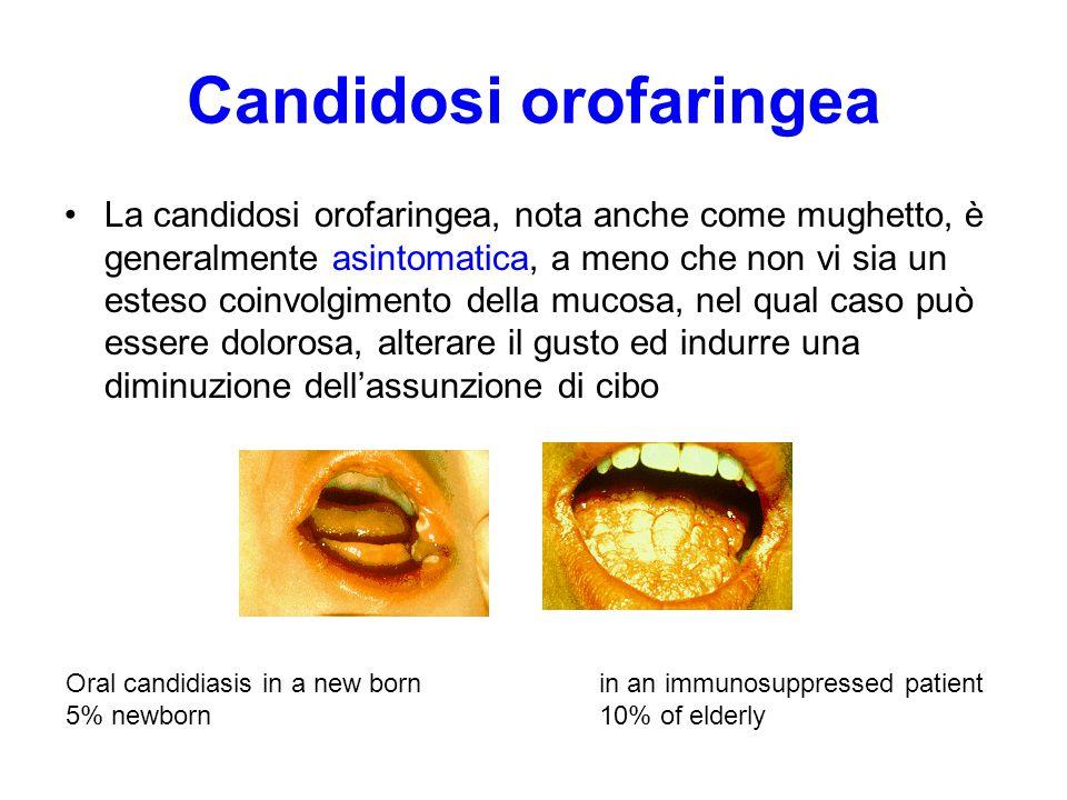 Candidosi orofaringea La candidosi orofaringea, nota anche come mughetto, è generalmente asintomatica, a meno che non vi sia un esteso coinvolgimento