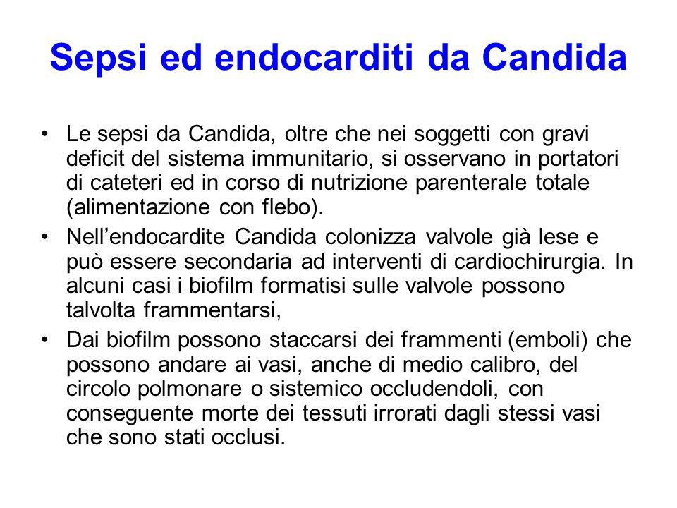 Sepsi ed endocarditi da Candida Le sepsi da Candida, oltre che nei soggetti con gravi deficit del sistema immunitario, si osservano in portatori di ca