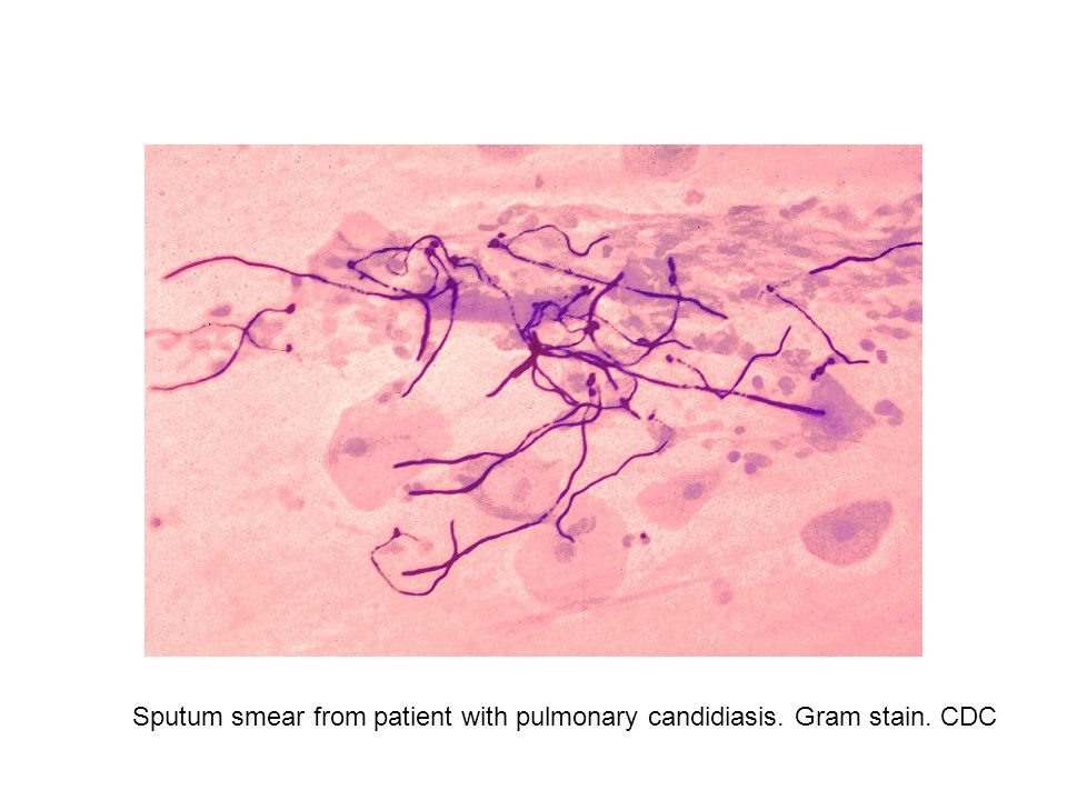 Sputum smear from patient with pulmonary candidiasis. Gram stain. CDC