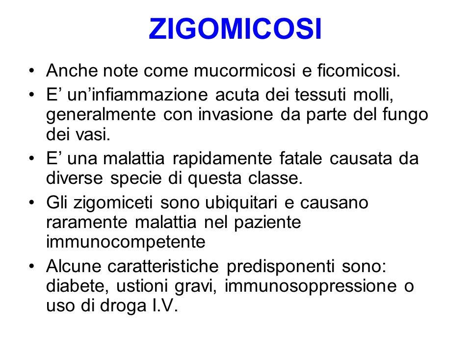ZIGOMICOSI Anche note come mucormicosi e ficomicosi. E' un'infiammazione acuta dei tessuti molli, generalmente con invasione da parte del fungo dei va