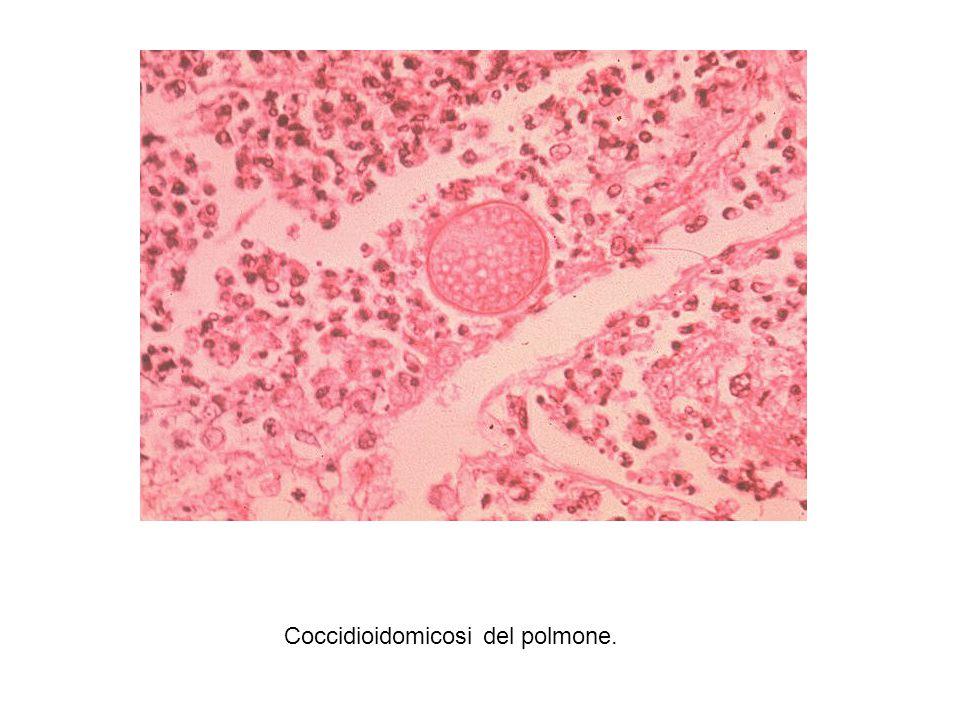 Coccidioidomicosi del polmone.