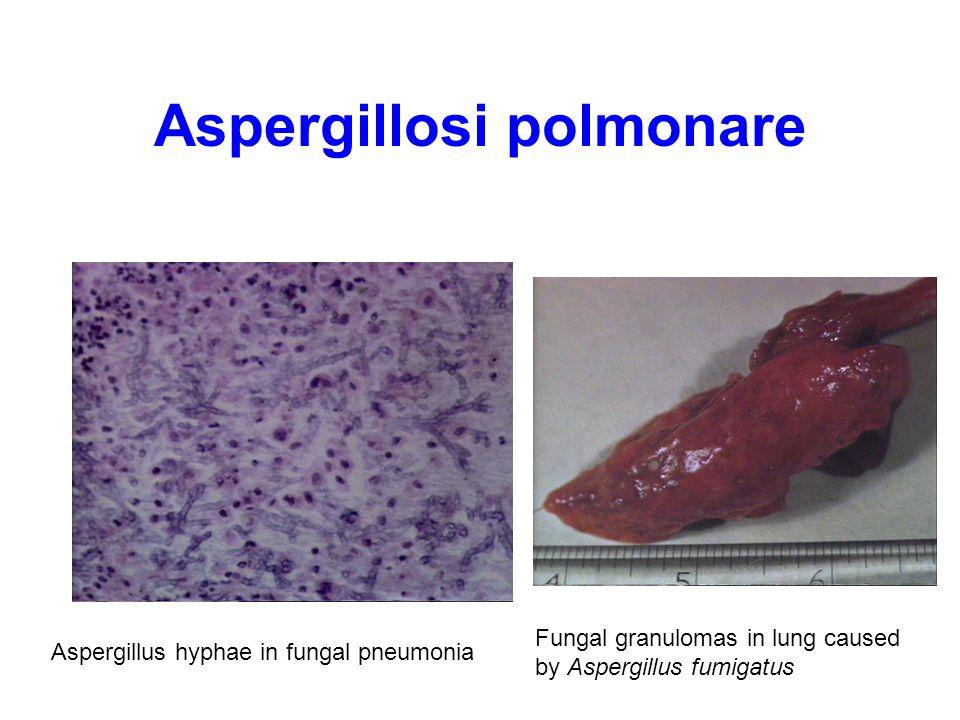 Aspergillosi polmonare Fungal granulomas in lung caused by Aspergillus fumigatus Aspergillus hyphae in fungal pneumonia