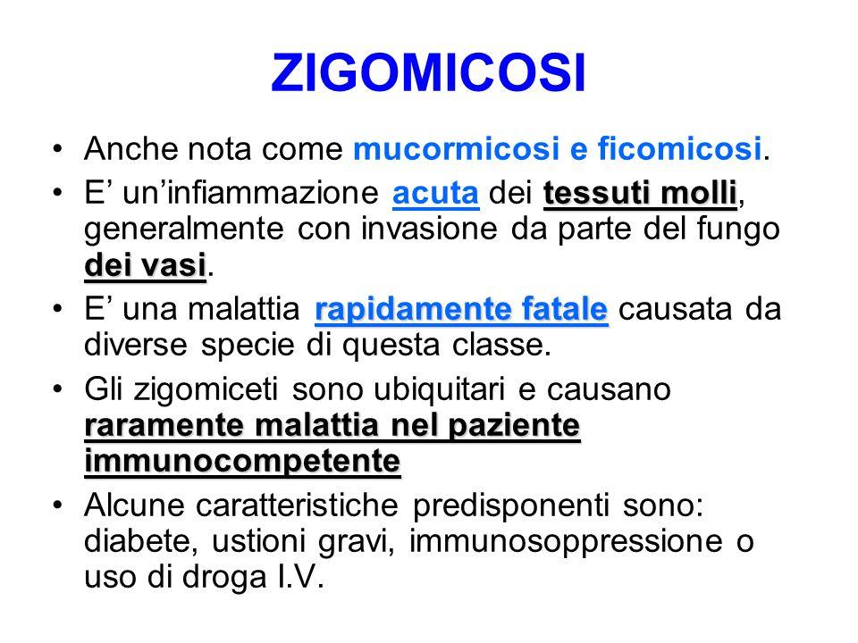 ZIGOMICOSI Anche nota come mucormicosi e ficomicosi. tessuti molli dei vasiE' un'infiammazione acuta dei tessuti molli, generalmente con invasione da