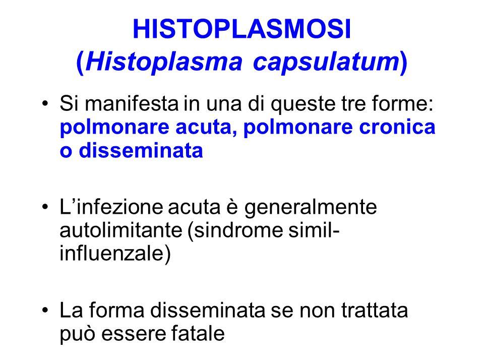 HISTOPLASMOSI (Histoplasma capsulatum) Si manifesta in una di queste tre forme: polmonare acuta, polmonare cronica o disseminata L'infezione acuta è g