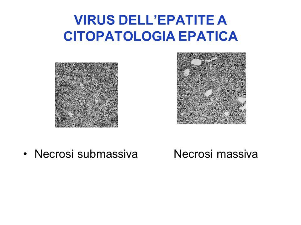 VIRUS DELL'EPATITE A CITOPATOLOGIA EPATICA Necrosi submassivaNecrosi massiva