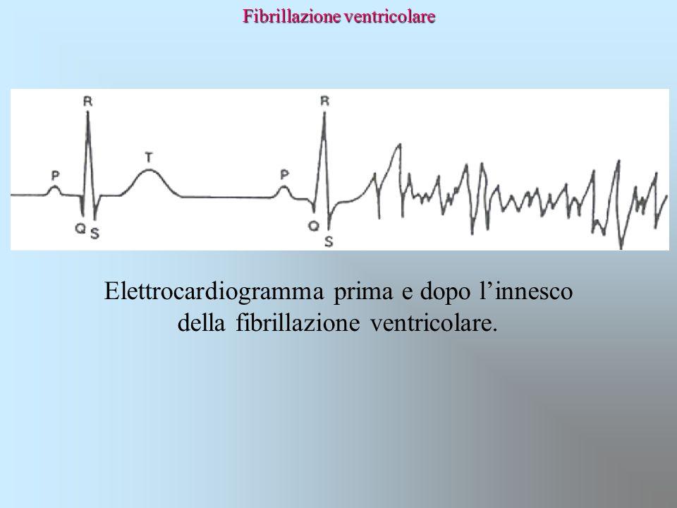 Fibrillazione ventricolare Elettrocardiogramma prima e dopo l'innesco della fibrillazione ventricolare.