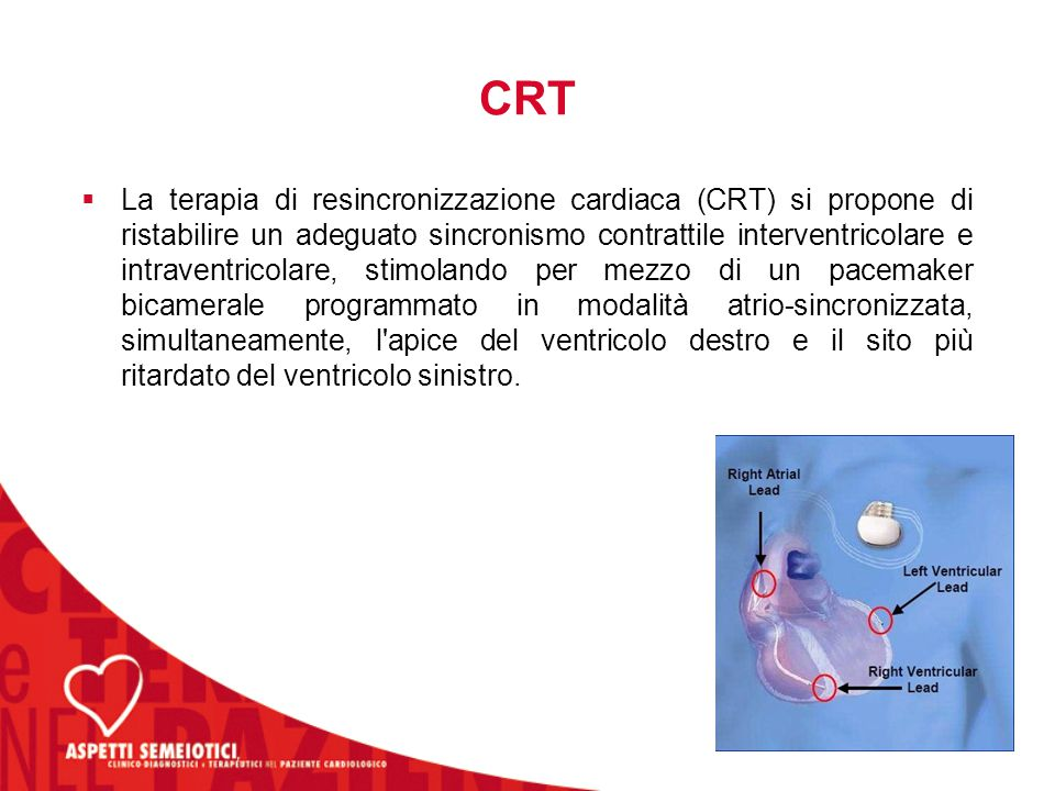 Dissincronia cardiaca  ATRIO-VENTRICOLARE  INTRA-VENTRICOLARE  INTER-VENTRICOLARE