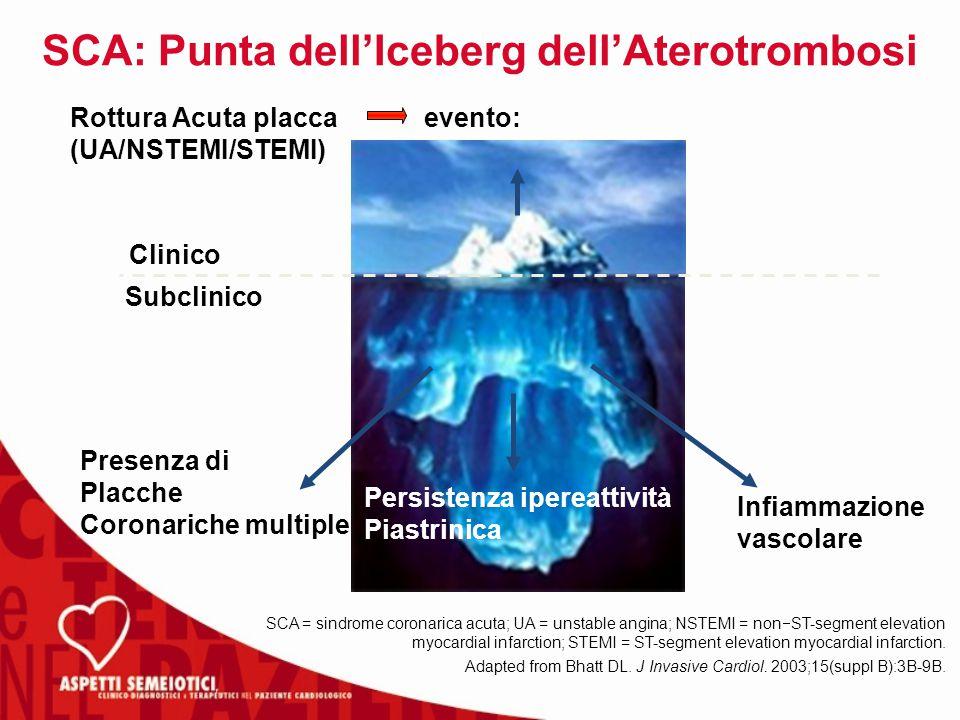 SCA: Punta dell'Iceberg dell'Aterotrombosi SCA = sindrome coronarica acuta; UA = unstable angina; NSTEMI = non  ST-segment elevation myocardial infarction; STEMI = ST-segment elevation myocardial infarction.